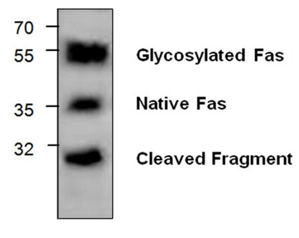 CD95 / Fas Antibody gallery image 1