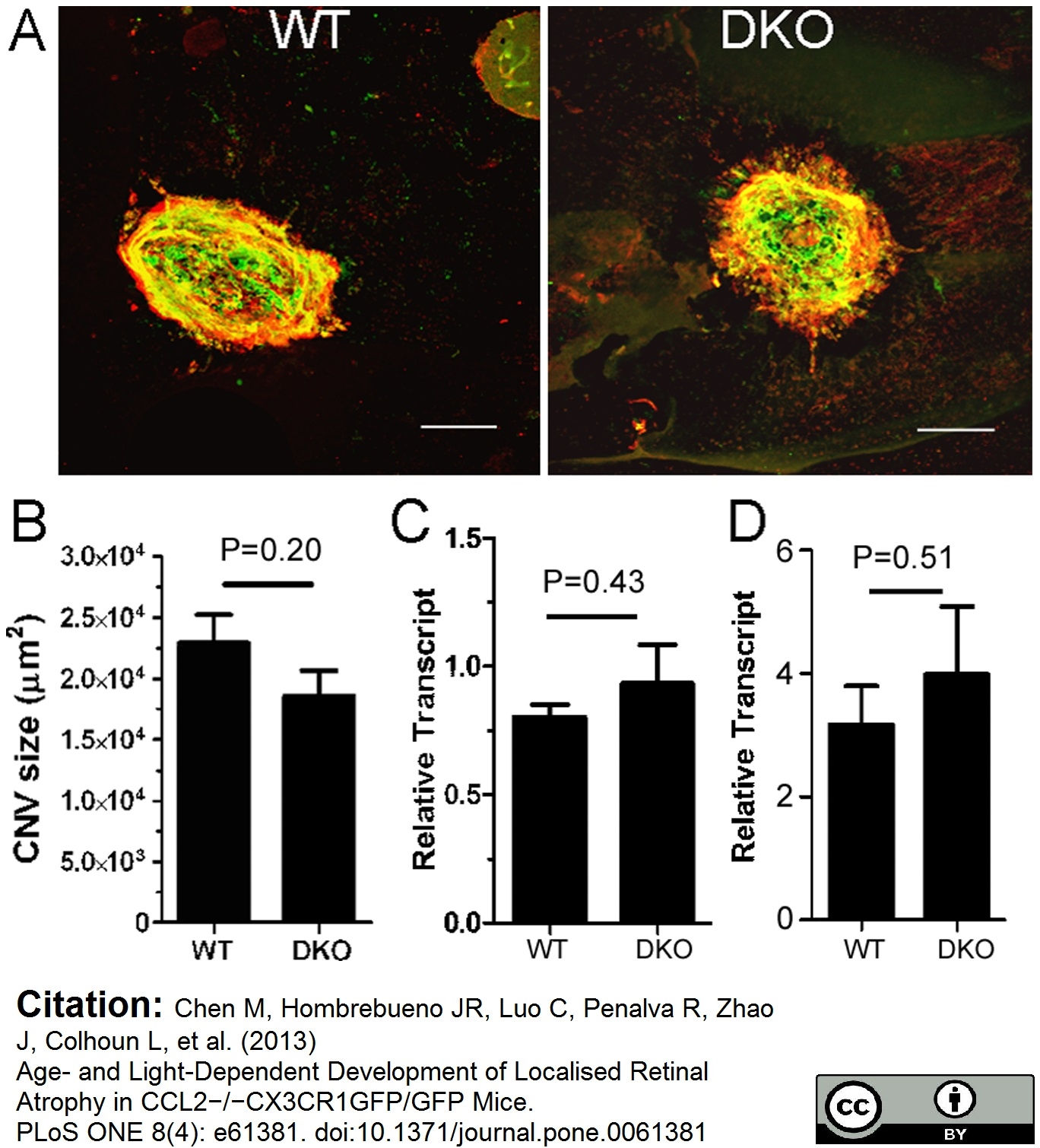 Collagen IV Antibody gallery image 7