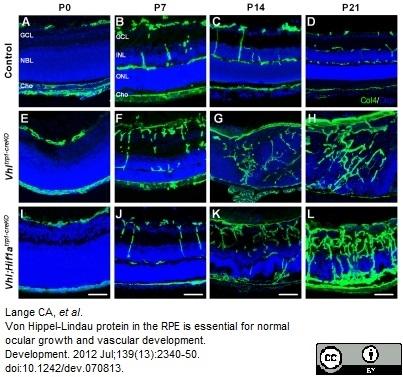 Collagen IV Antibody gallery image 5