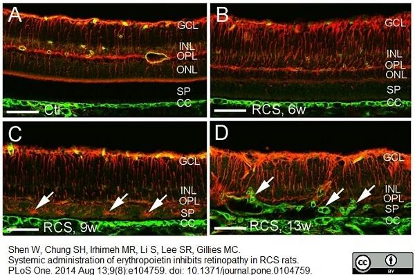 Collagen IV Antibody gallery image 1