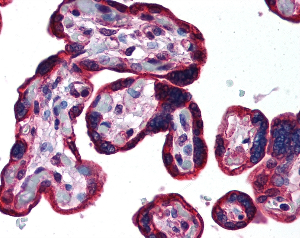 Cytokeratin 19 Antibody gallery image 1