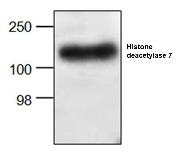 Histone Deacetylase 7 Antibody gallery image 1
