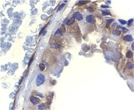ICAD Antibody gallery image 2