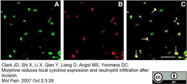 Ly-6B.2 Alloantigen Antibody | 7/4 gallery image 13