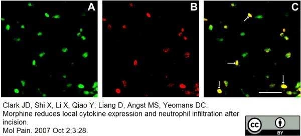 Ly-6B.2 Alloantigen Antibody   7/4 gallery image 22
