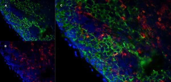 MARCO Antibody | ED31 thumbnail image 6