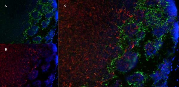 MARCO Antibody | ED31 thumbnail image 5