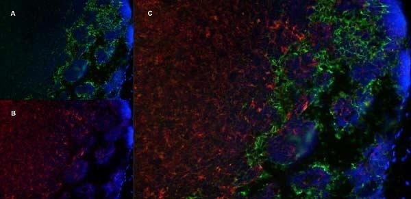 MARCO Antibody | ED31 gallery image 5