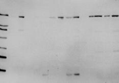 Myosin Antibody | 952 gallery image 1
