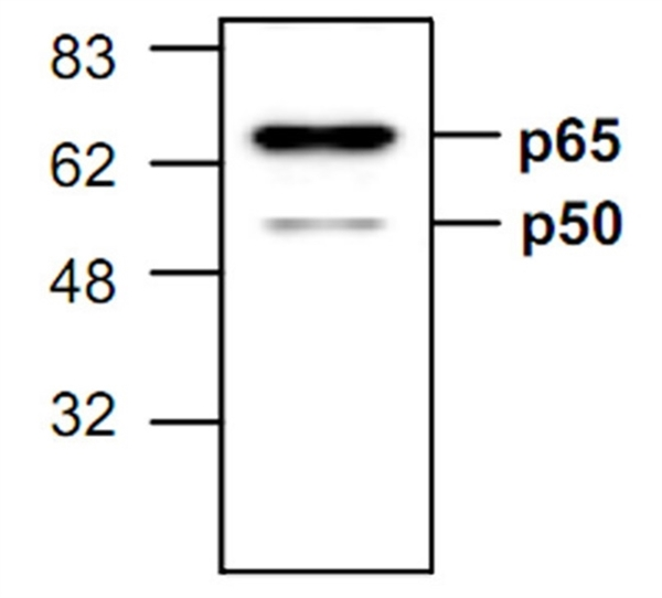 NFkB p65 Antibody gallery image 1