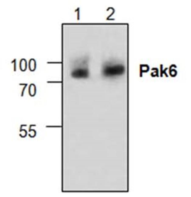 PAK6 Antibody gallery image 1