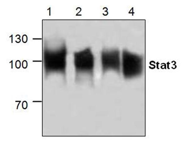 STAT3 Antibody gallery image 1
