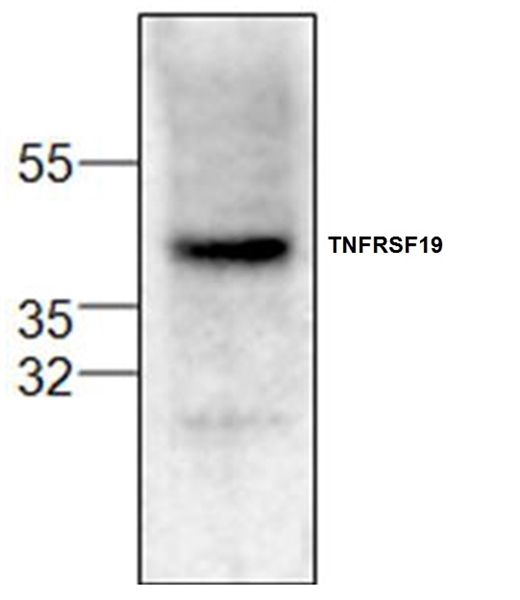TNFRSF19 Antibody gallery image 1