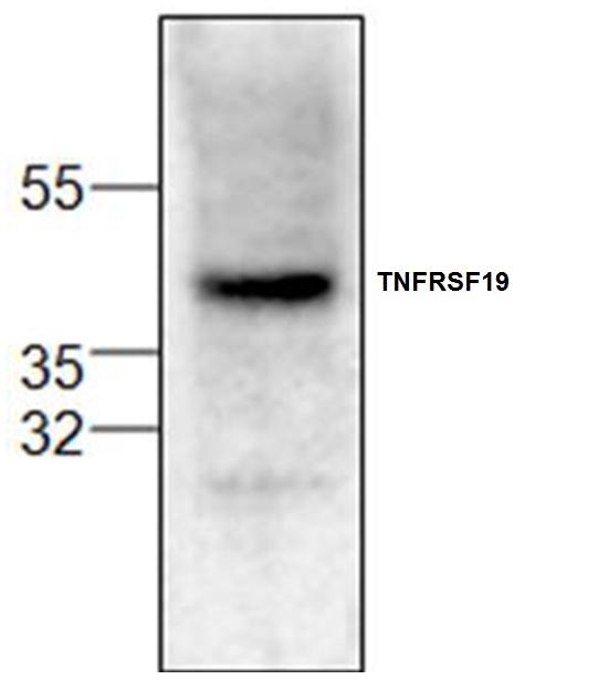 TNFRSF19 Antibody gallery image 1