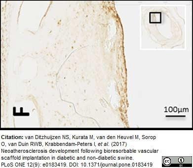 CD45 Antibody | MAC323 gallery image 2