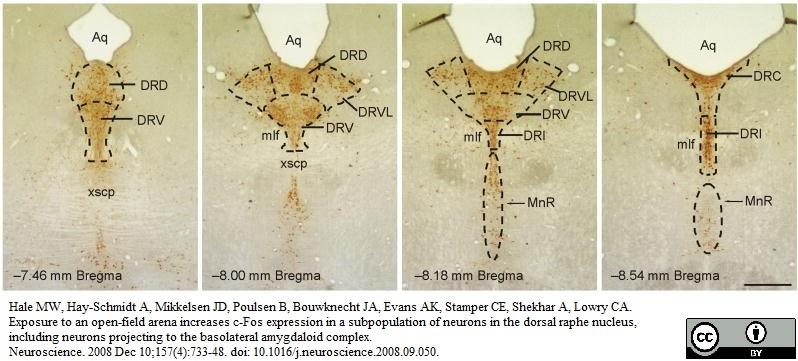 Tryptophan Hydroxylase Antibody gallery image 4