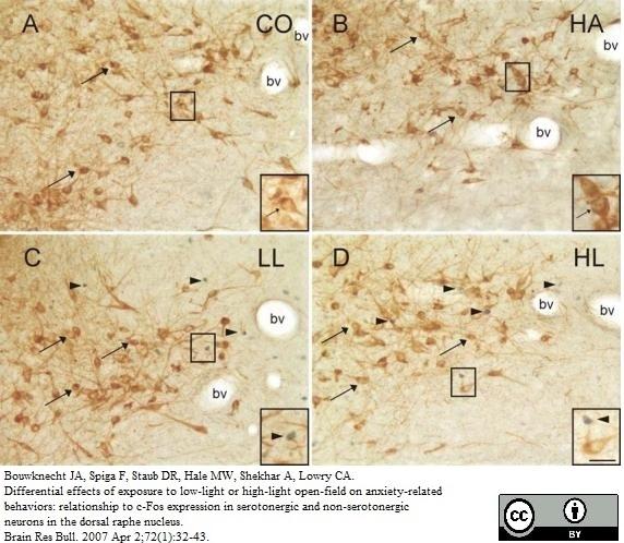 Tryptophan Hydroxylase Antibody gallery image 3