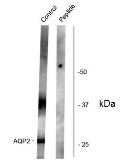 Aquaporin 2 (pSer261) Antibody gallery image 1