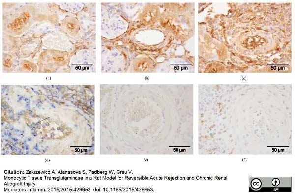 CD163 Antibody | ED2 gallery image 19