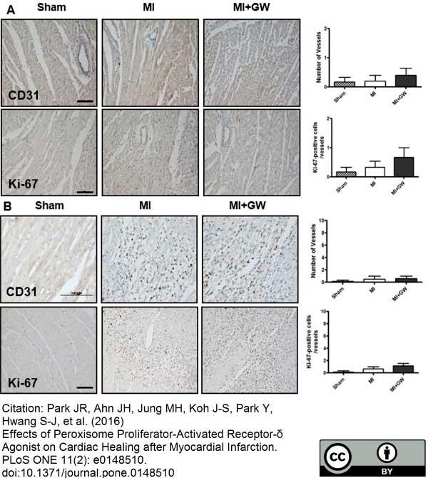 CD31 Antibody | TLD-3A12 gallery image 11