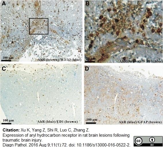 CD43 Antibody | W3/13 gallery image 8