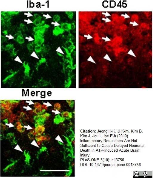 CD45 Antibody | OX-1 gallery image 10