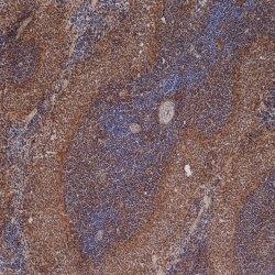 CD54 Antibody | 1A29 gallery image 1