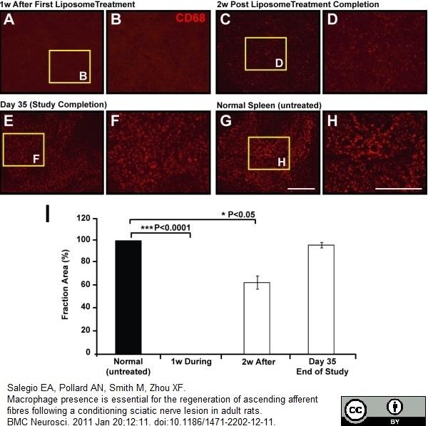 CD68 Antibody | ED1 gallery image 22