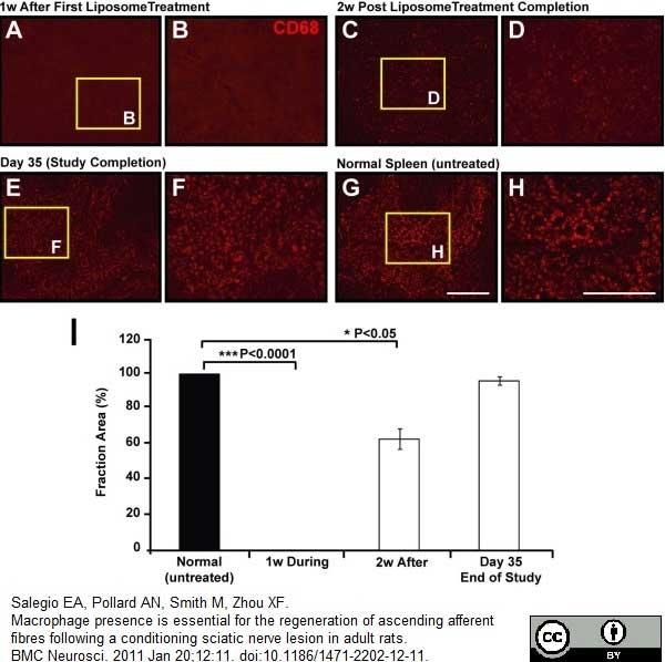 CD68 Antibody | ED1 gallery image 25