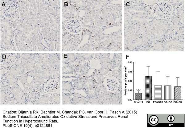 CD68 Antibody | ED1 gallery image 28