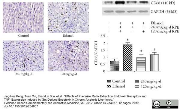 CD68 Antibody | ED1 gallery image 14
