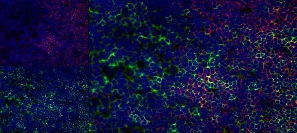 CD8 Beta Antibody   341 gallery image 7