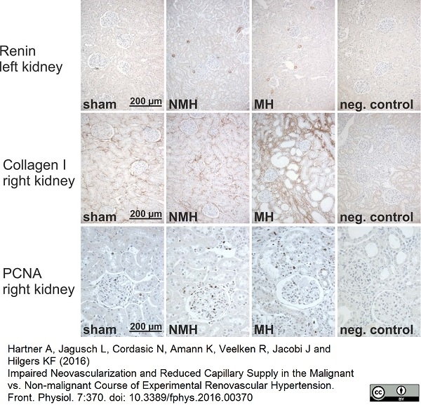 Collagen I Antibody gallery image 1