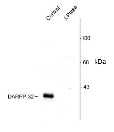 Darpp-32 (pThr75) Antibody gallery image 1