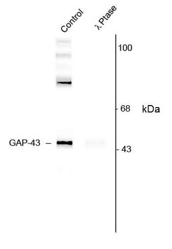 GAP43 (pSer41) Antibody gallery image 1