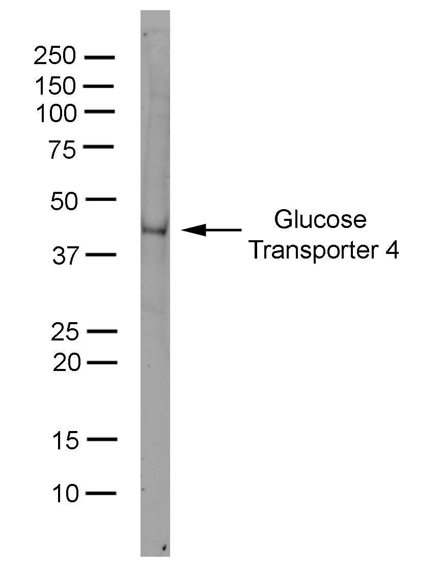 Glucose Transporter 4 Antibody   1F8 gallery image 1