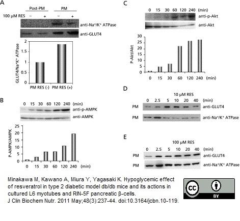 Glucose Transporter 4 Antibody | 1F8 gallery image 3
