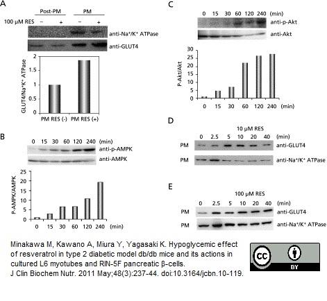 Glucose Transporter 4 Antibody   1F8 gallery image 3