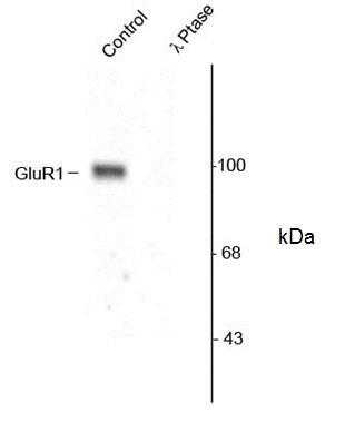 GluR1 (pSer845) Antibody gallery image 1
