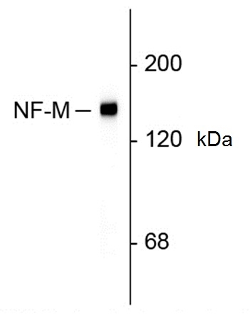 Neurofilament M Antibody | 3H11 gallery image 1