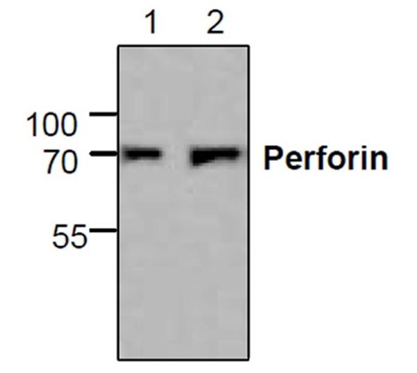 Perforin Antibody gallery image 1