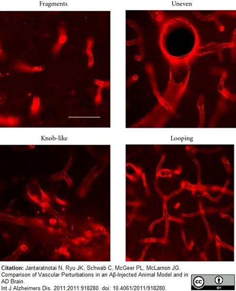RECA-1 Antibody | HIS52 gallery image 15
