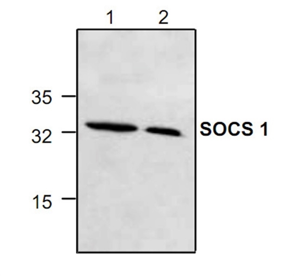 SOCS-1 Antibody gallery image 1