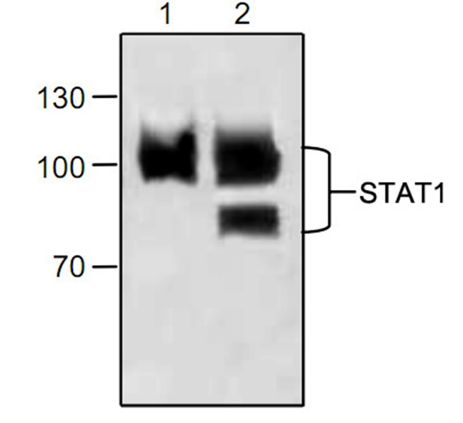 STAT1 Antibody gallery image 1