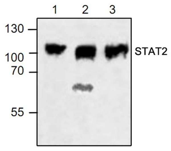 STAT2 Antibody gallery image 1