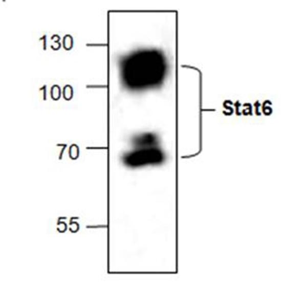 STAT6 Antibody gallery image 1