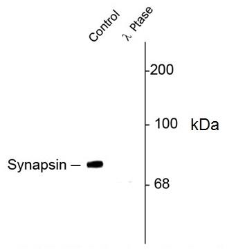 Synapsin I (pSer549) Antibody gallery image 1