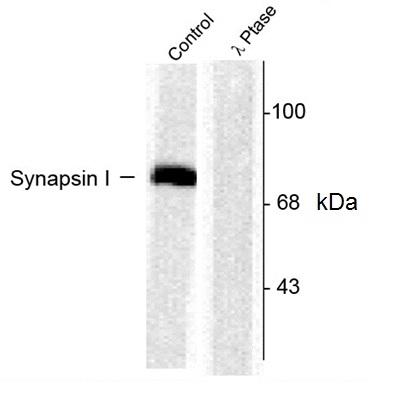 Synapsin I (pSer603) Antibody gallery image 1