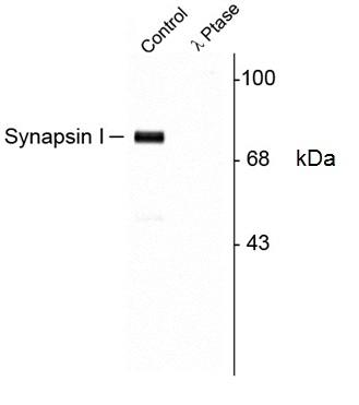 Synapsin I (pSer9) Antibody gallery image 1
