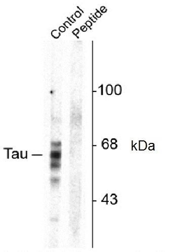 tau (pSer416) Antibody gallery image 1